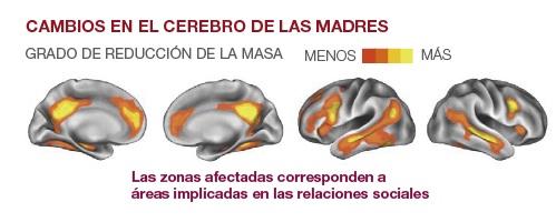 cerebro-madre